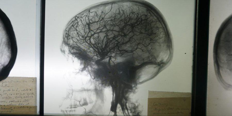 RTP2 exibe documentário sobre o neurocirurgião português António Egas Moniz, Prémio Nobel da Medicina