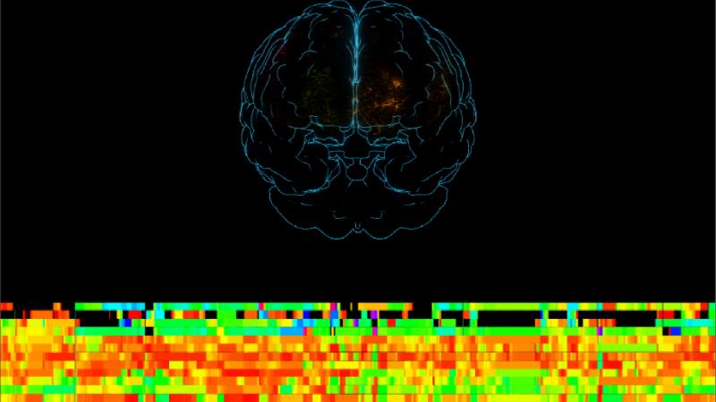 Exposição da Gulbenkian sobre Cérebro humano tem banda sonora de Rodrigo Leão